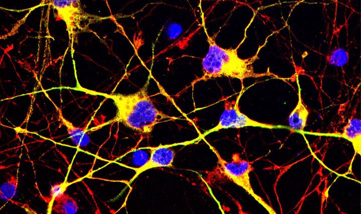 Purified neurons
